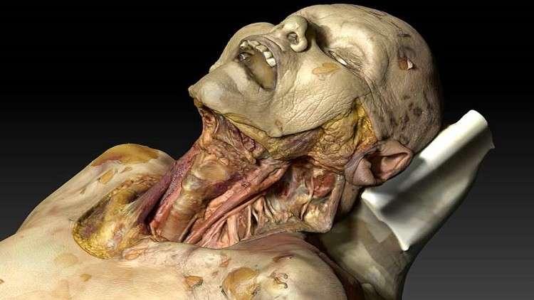 جثة افتراضية قد تنقذ مستقبل الأطباء