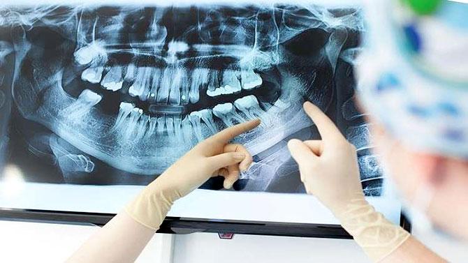 سبب مرض الزهايمر قد يعيش داخل فمك!