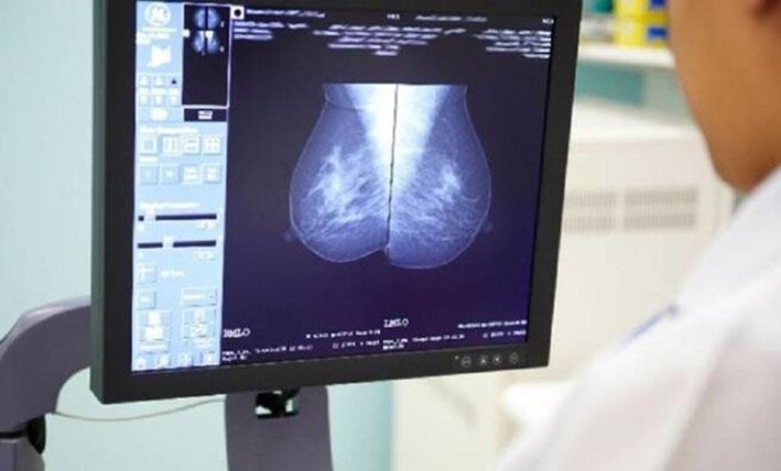 جرعة إشعاع واحدة بدلا من أسابيع علاج إشعاعي لسرطان الثدي
