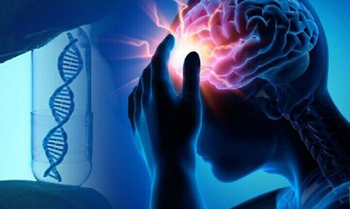 إثبات فائدة نقل الدم في علاج الجلطة الدماغية