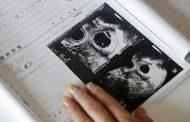 نصائح ذهبية للراغبات في الإنجاب والوقاية من المضاعفات والتشوهات الخطيرة