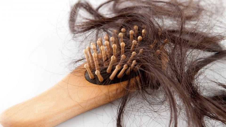 هل تسبب قشرة الرأس بتساقط شعرك؟