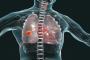 مزيج الهيليوم والأكسجين... دواء فعال ضد