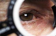العيون الملتهبة من بين أهم أعراض