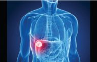 لصحة الكبد.. 5 أطعمة مهمة لا غنى عنها