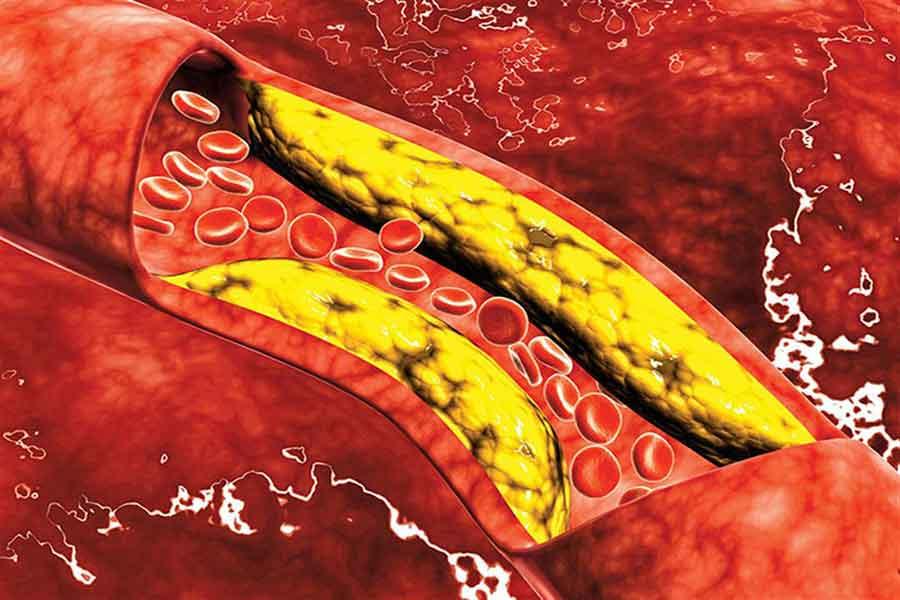 علامة قد تدل على ارتفاع مستويات الكوليسترول