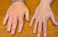 5 أعراض تظهر على وجهك تدل على إصابتك بهذه الأمراض