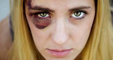 5 علاجات منزلية للتخلص من العين السوداء